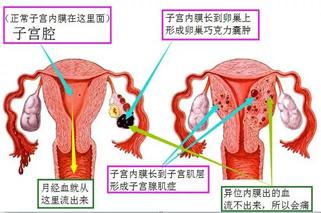 成都哪家医院治疗子宫内膜异位症